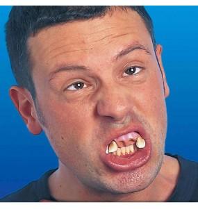 Dentadura mellado